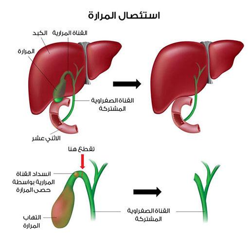 ما هي اعراض التهاب المرارة