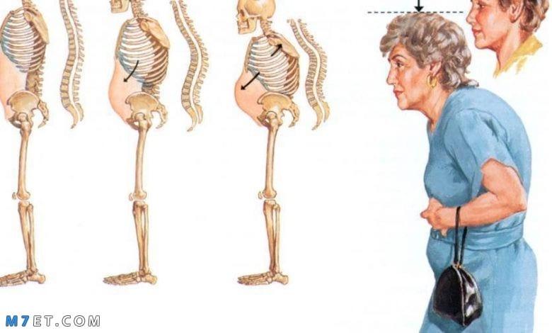 أنواع هشاشة العظام
