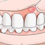 علاج التهاب اللثة.. الأسباب والأعراض وطرق العلاج