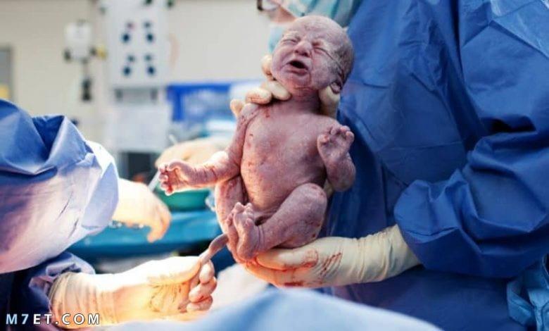متى يحدث التبويض بعد الولاده القيصريه