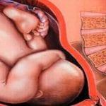 وضعية الجنين في الحمل وهل يمكن تغييرها