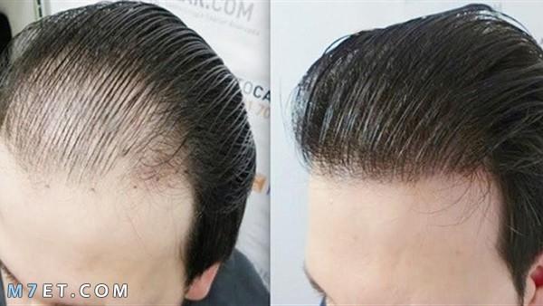 البريد الجوي شاملة غير قابل للقراءة زراعة الشعر في مصر للرجال Dsvdedommel Com
