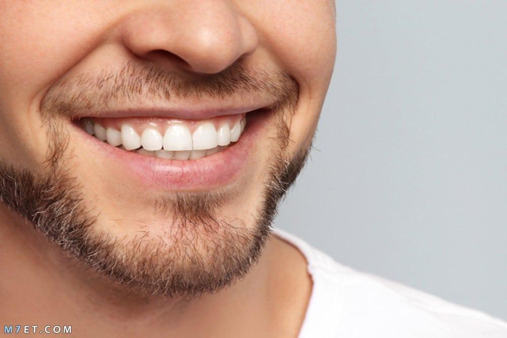 كيفية الحصول على أسنان بيضاء ؟