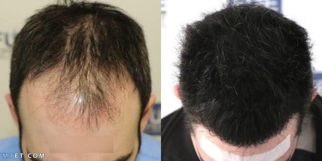 كيف تتم عملية زرع الشعر