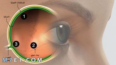 Photo of ما أسباب التهاب عصب العين وما العلاج