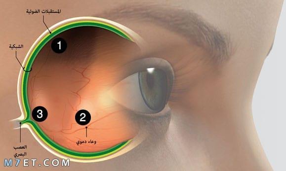 ما أسباب التهاب عصب العين