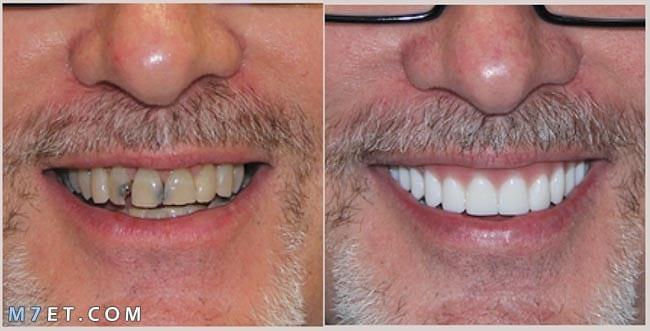 ما هو لومينير الأسنان وما ميزاته وأسباب تركبيه