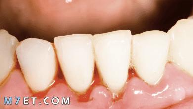 Photo of علاج التهاب اللثة بزيت الزيتون