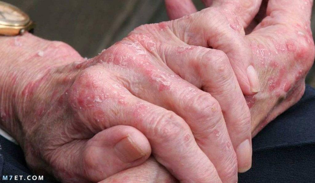 اعراض مرض ذئبة الحمراء