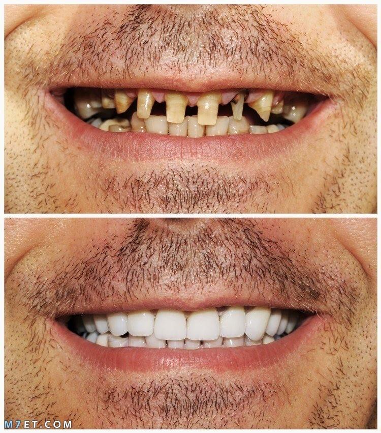 ما هو لومينير الأسنان ؟...وما ميزاته وأسباب تركبيه