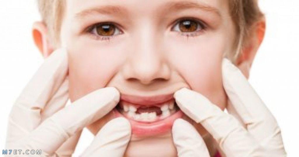 سبب الم الاسنان عند اكل الحلويات