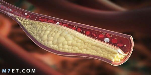 اسباب نزول الدم مع البراز عند النساء