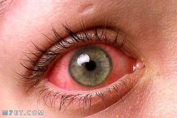 تكلفة عملية ظفرة العين