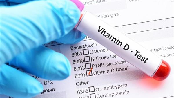 اعراض نقص فيتامين دال الشديد عند النساء