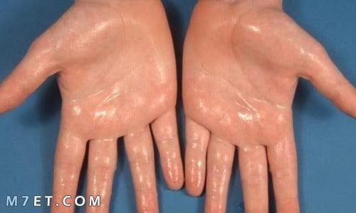 ما اسباب تعرق اليدين ؟