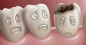 أسرع مسكن للأسنان بالأعشاب والأدوية
