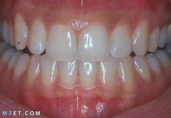 ادوية علاج التهاب اللثة والاسنان