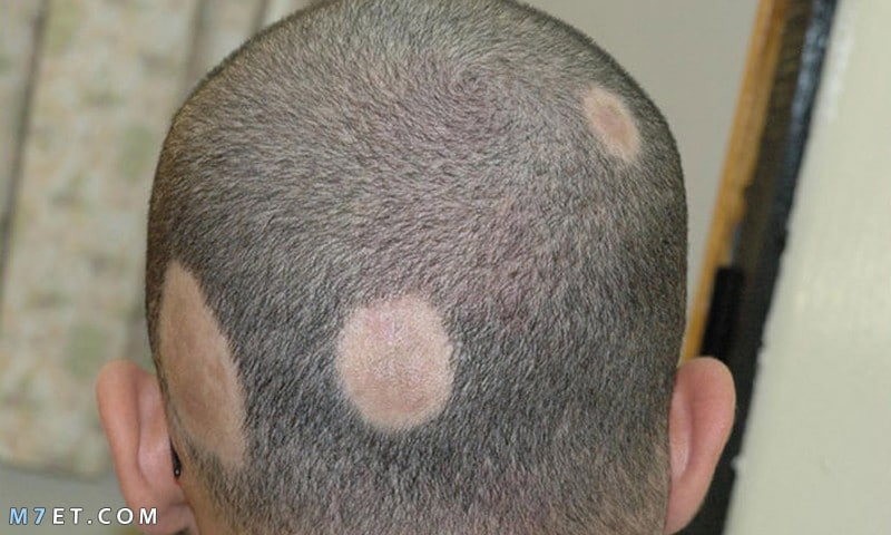 أفضل طرق علاج فطريات الرأس