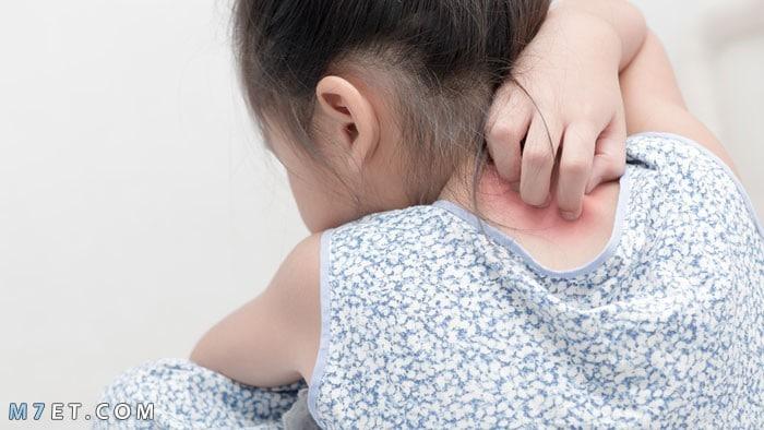 ظهور حبوب في الجسم كقرص الناموس ومضاعفاتها وكيفية علاجها