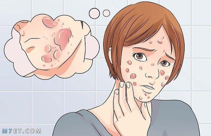 طريقة ازالة حبوب الوجه