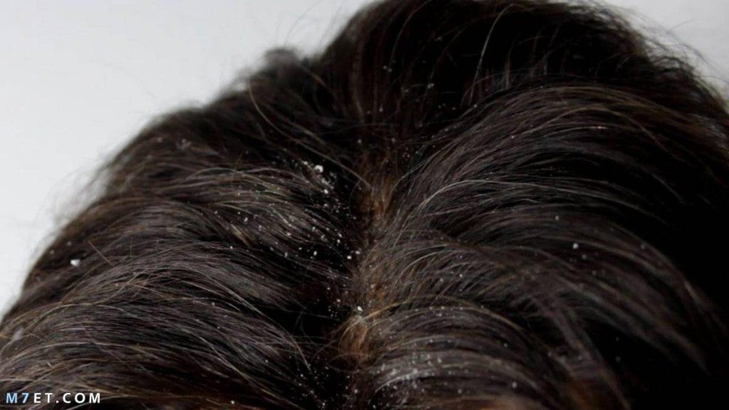 أسباب قشور الشعر وطرق علاجها