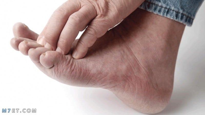 أسباب وعلاج الفطريات بين أصابع القدم..هكذا تتخلص منها