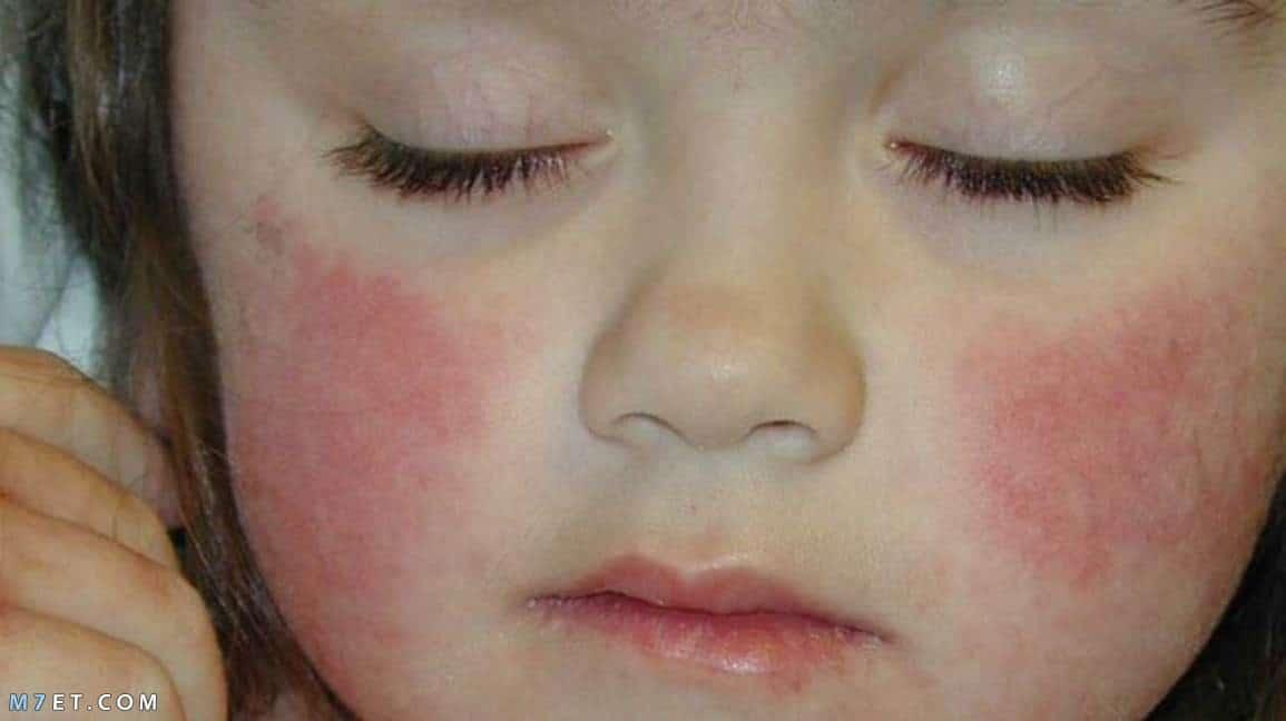 احمرار الجلد عند الاطفال