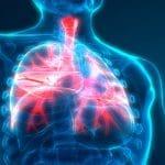 اعراض التهاب الرئة بالتفصيل مع الاسباب وطرق العلاج