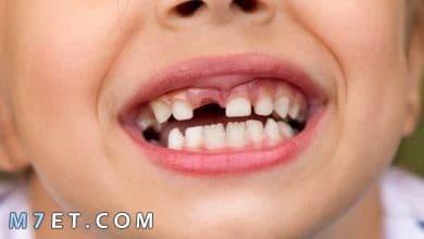 Photo of تفسير حلم سقوط الأسنان