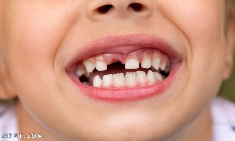 تفسير حلم تساقط الأسنان