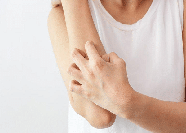 علاج الأكزيما