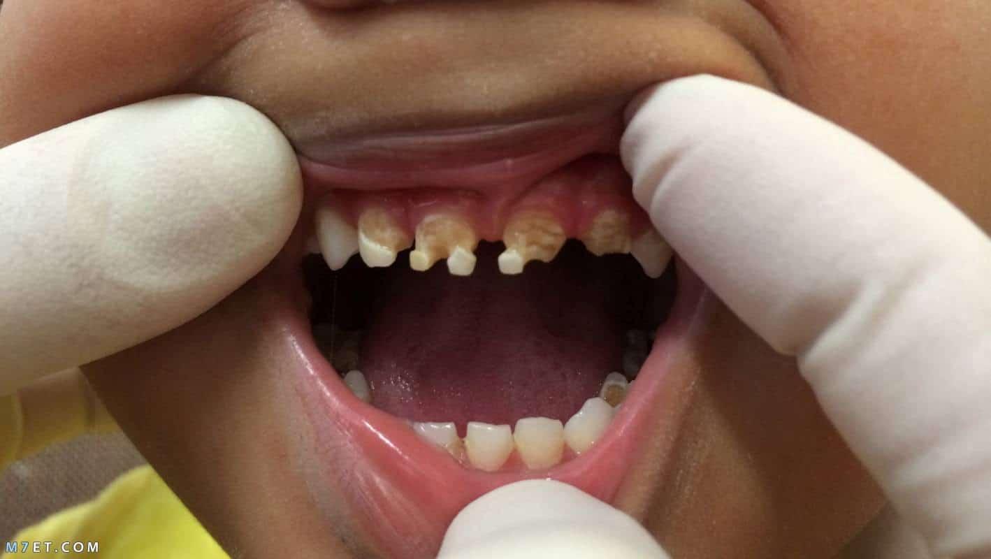 علاج تسوس اسنان الاطفال