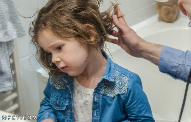 تساقط الشعر عند الاطفال
