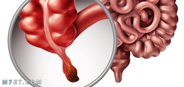 اعراض الزائدة الدودية عند النساء