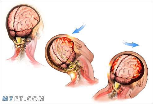 ارتجاج المخ
