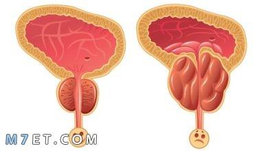 Photo of اعراض البروستاتا عند الرجال وكيفية علاجها