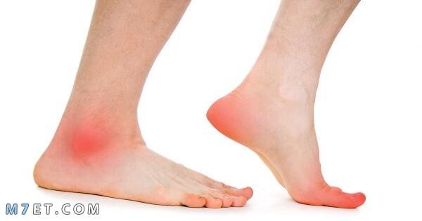 ماهي اعراض جلطة القدم وكيفية الوقاية منها