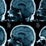 اعراض ضمور المخ وطرق علاج هذا المرض المجربة