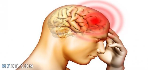 اعراض نزيف الدماغ
