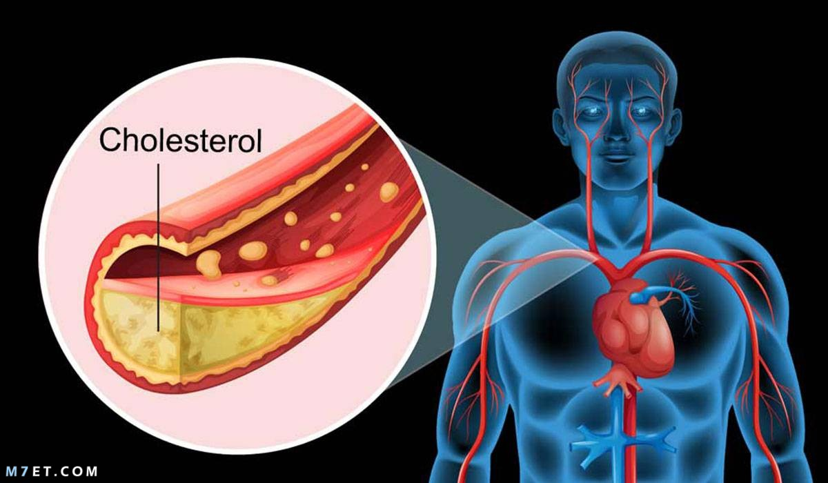 اعراض الدهون الثلاثية