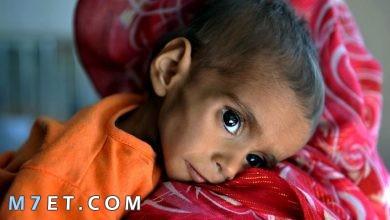 Photo of اسباب نقص التغذية عند الاطفال والنساء وطرق العلاج