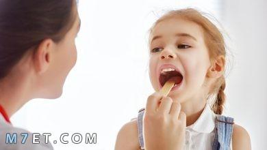 Photo of اقوى اعشاب علاج احتقان الحلق للاطفال مجربة