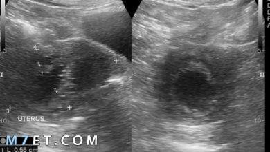 Photo of اسباب سماكة بطانة الرحم و 6 إعراض تشير إلى أصابتكِ بها