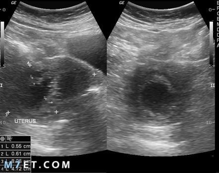 اسباب سماكة بطانة الرحم
