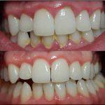 طرق علاج التهاب اللثة والأسنان وأهم 5 نصائح طبية للوقاية