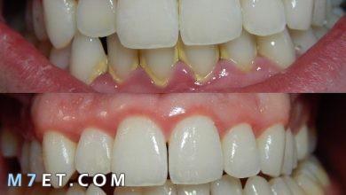 Photo of طرق علاج التهاب اللثة والأسنان وأهم 5 نصائح طبية للوقاية