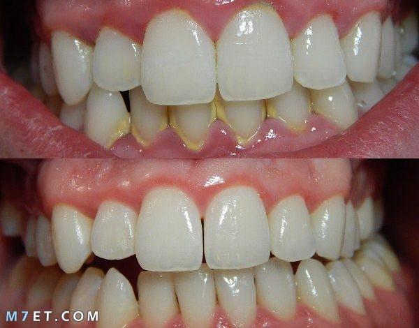 التهاب اللثة والأسنان