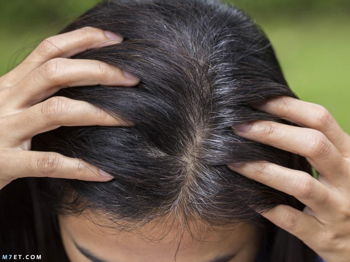 ظهور الشعر الابيض في سن العشرين