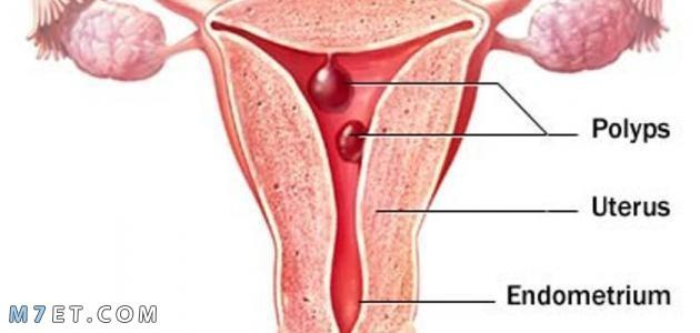 اسباب النزيف الرحمي لدى السيدات بالتفصيل