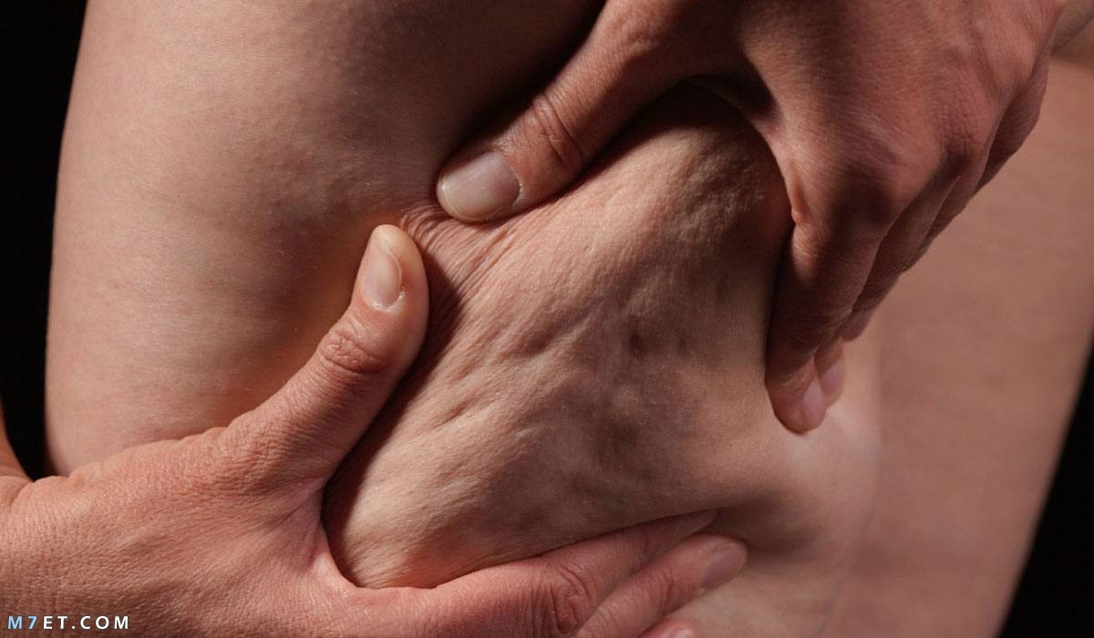 علاج السيلوليت